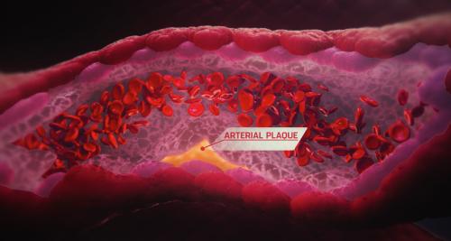 formation de plaque dans les artères, performance sportive, apnée
