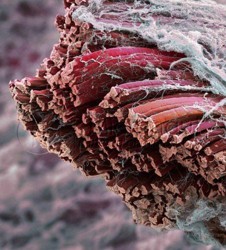 Fibres musculaires d'un muscle strié squelettique