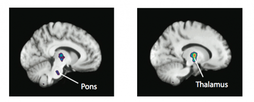 la méditation semble modifier le cerveau, importance en apnée