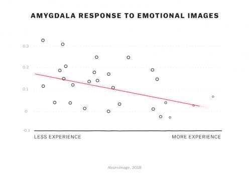 Réponse de l'amygdale aux images émmotionnelles