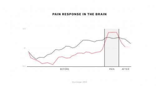 Réponse cérébrale à la douleur, chez des experts en méditation et chez des débutants